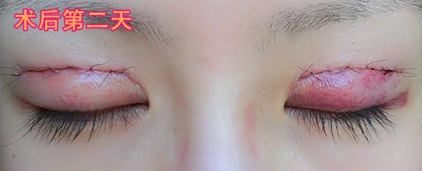 谁帮我看看,埋线双眼皮20天了好像没睡醒一样,是不是不适合双眼皮?