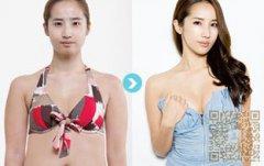 自体脂肪丰胸术费用高吗?