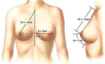 超声波自体脂肪丰胸