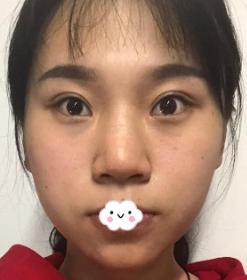 鼻综合整形术
