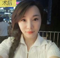 舞蹈老师林梦在重庆超雅面部提升术的效果展示图片
