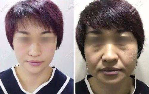 面部提升术