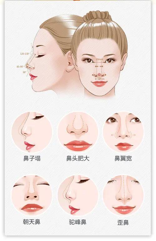 选择适合让自己变美的隆鼻方式