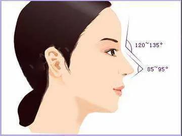 鼻尖挺翘,隆鼻手术后有特有的风格展现