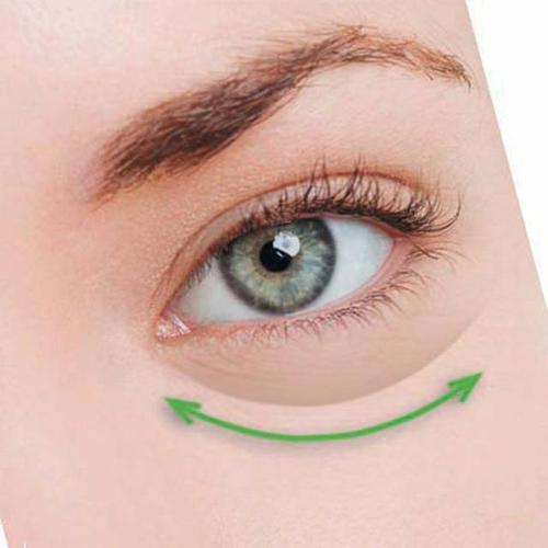 去眼袋手术
