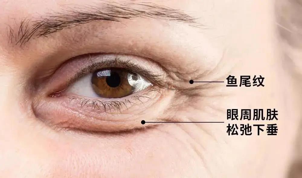 你的眼睛比脸部皮肤早衰老了8年…4 作者:不在不再b 帖子ID:89837
