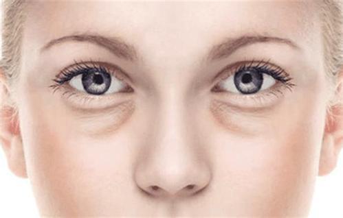 【去眼袋手术】眼部显老?都是眼眶脂肪不安分惹得祸