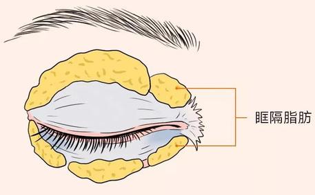 一键消除对称性差丨肉条丨的眼修复技术,它来了