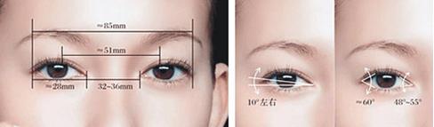 做完不动刀双眼皮手术七天,能恢复好吗?