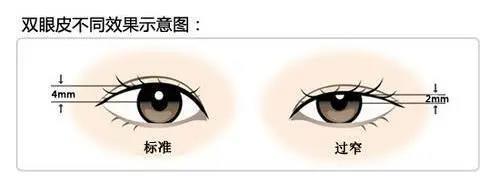 做完手卝术这么久,我同学都以为我是天生大眼睛