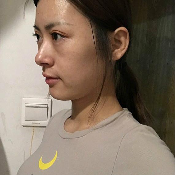 不动刀双眼皮手术【0痕】,永远的神!