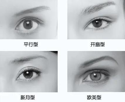 平肿眼不用怕,用这款双眼皮手术一样有明媚大眼!
