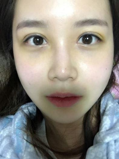 双眼皮手术修复为什么又贵又难?